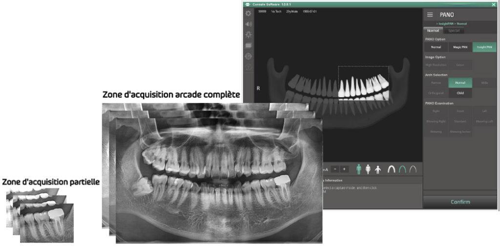 Champs-libre-logiciel 3D