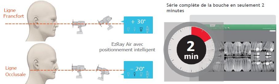 EZ-Ray-portable